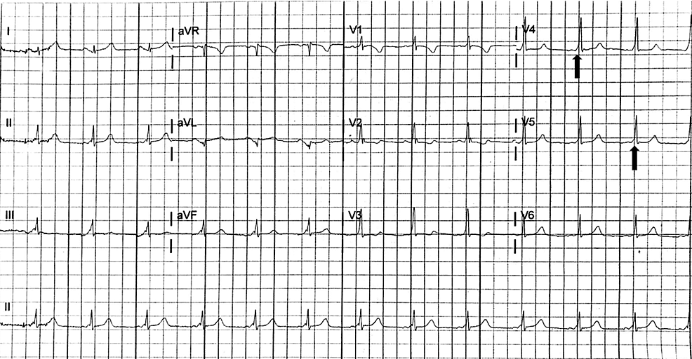 Electrocardiogram-obtained-after-resolution-of-supraventricular-tachycardia,-demonstrating-normal-sinus-rhythm-with-short-PR-interval,-wide-QRS-duration,-and-delta-waves-(black-arrows)