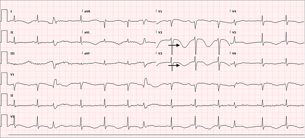 Admission-ECG:-QTc-at-757-ms,-deeply-inverted-T-waves-on-V2-and-V3,-and-quadrigeminy-arrhythmia.