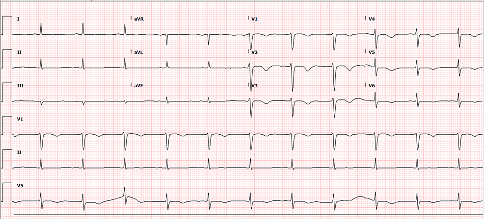 ECG-five-days-after-admission.-QTc-improved-to-464-ms.-T-wave-inversion-present-in-precordial-leads.