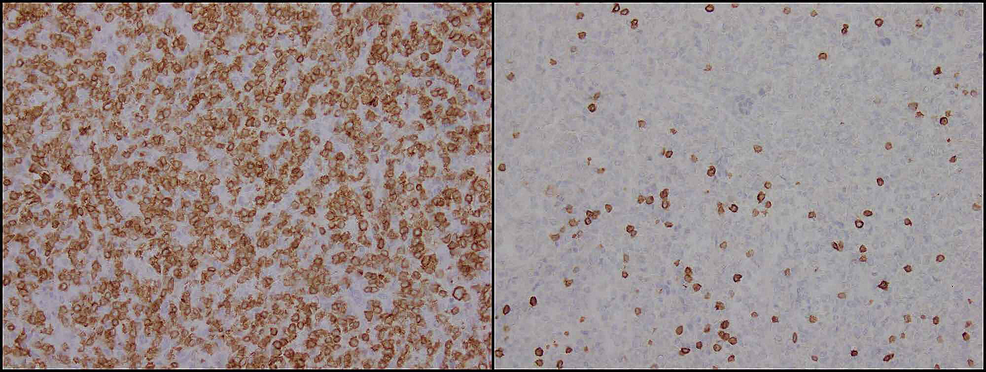 Immunohistochemical-staining-confirming-atypical-cells-to-be-T-cells-which-characteristically-stain-strongly-positive-for-CD3-(right-panel)-and-negative-for-CD5-(left-panel).