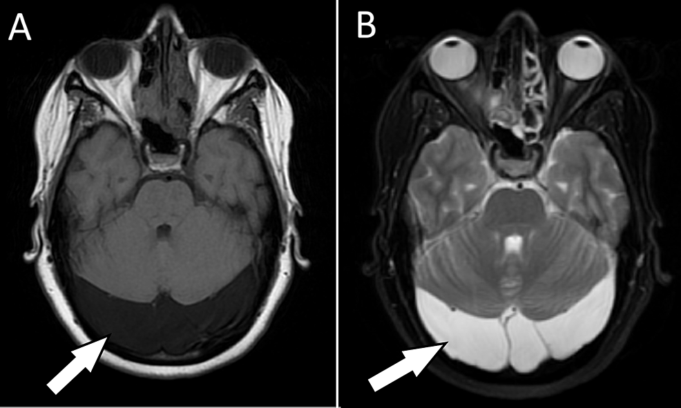 MRI-of-the-brain-without-contrast-shows-bilateral-retrocerebellar-arachnoid-cysts-with-mild-mass-effect-on-the-cerebellum,-which-appear-(A)-hypointense-on-T1-weighted-imaging-and-(B)-hyperintense-on-T2-weighted-imaging.