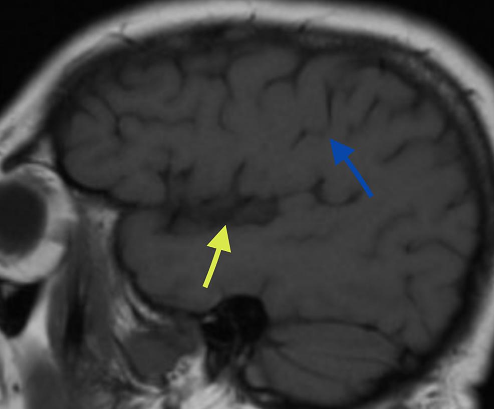 T1-weighted-coronal-MRI