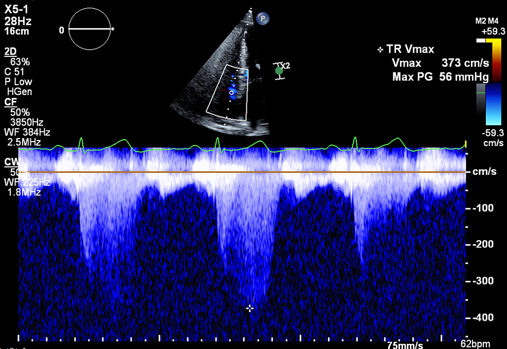 Initial-TTE-showing-tricuspid-regurgitation-Vmax-373-cm/s.