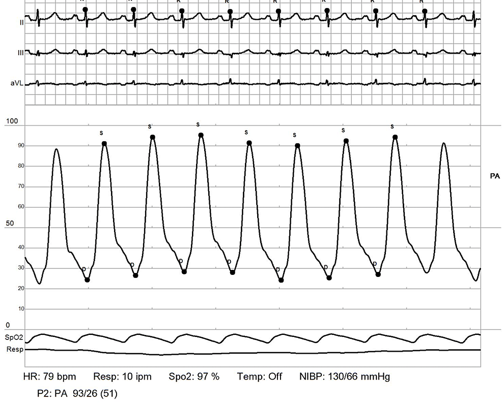 RHC:-pulmonary-artery.