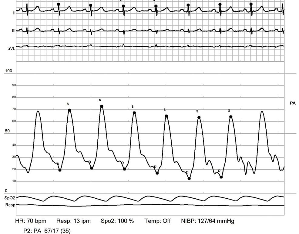 RHC:-pulmonary-artery---post-reactivity.