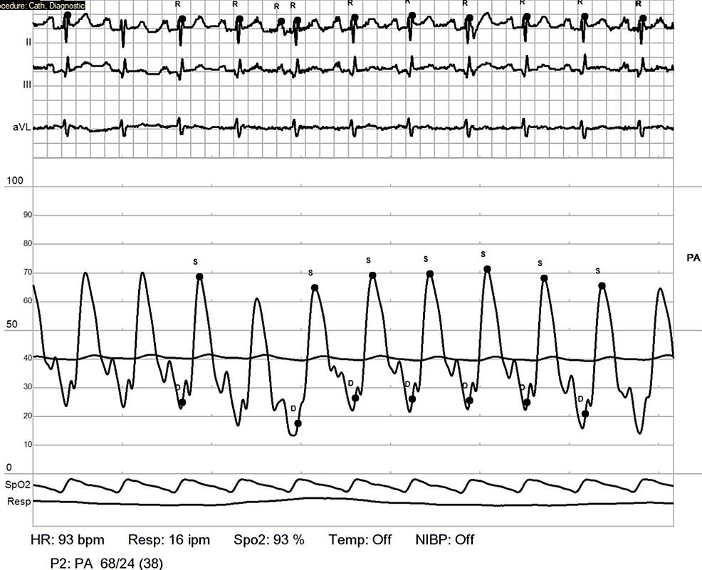Repeat-RHC:-pulmonary-artery.
