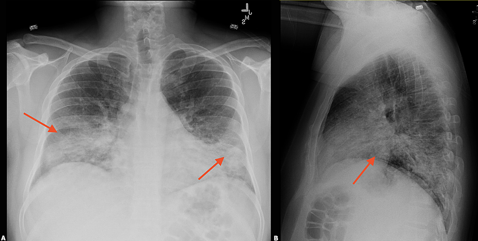 CXR-–-day-of-admission-showing-bilateral-lower-lobe-interstitial-infiltrates-(red-arrows).-(A):-Postero-anterior-view;-(B):-Lateral-view.