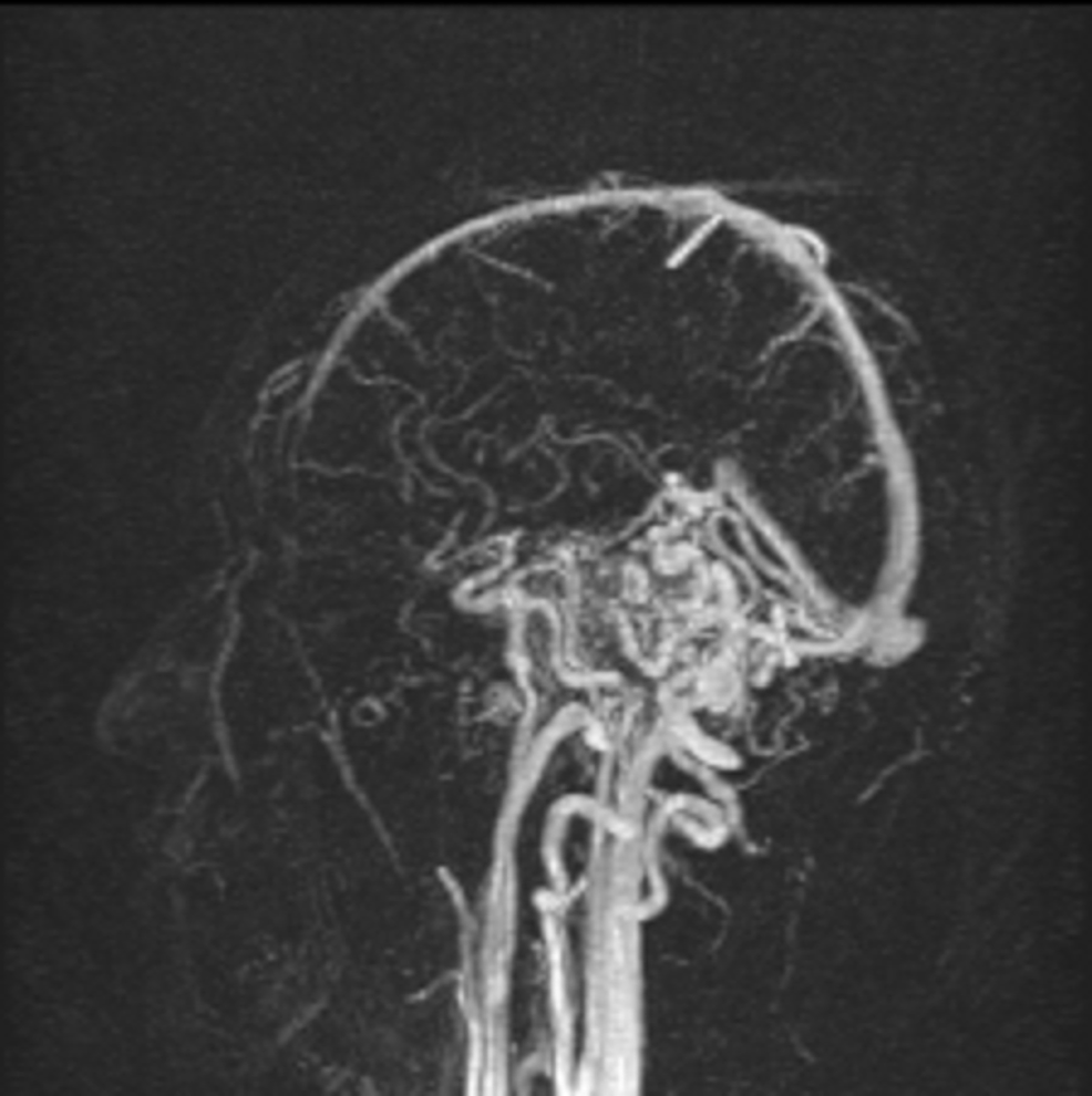 MRA-head-with-contrast,-sagittal-section