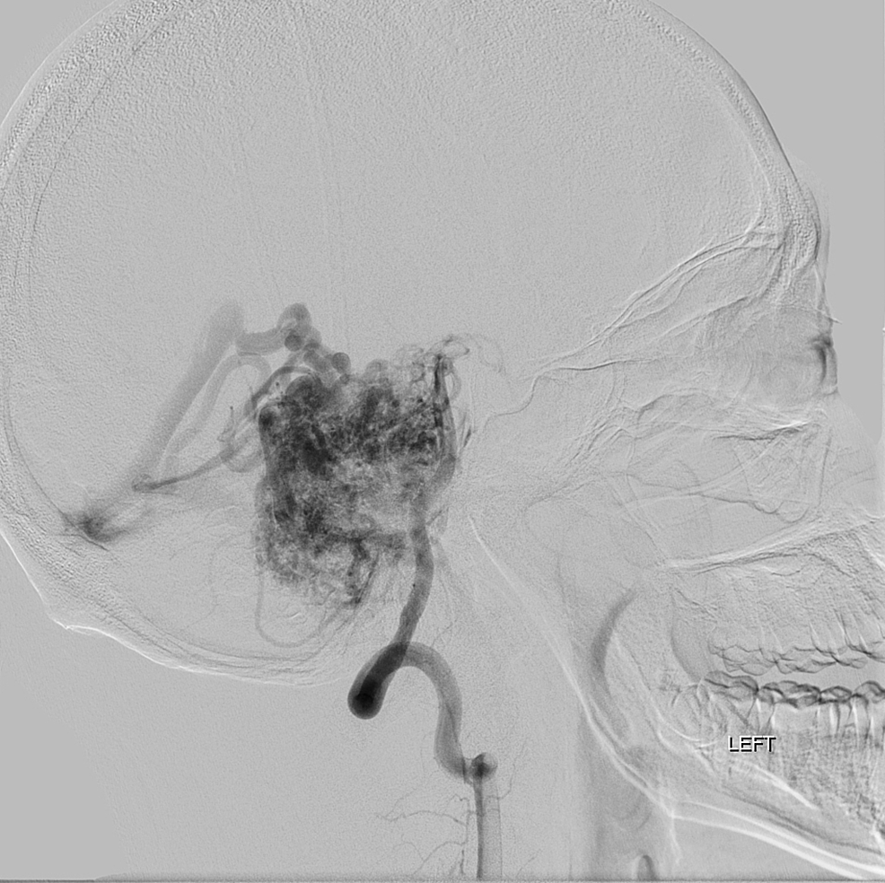 Angiography-of-vertebral-artery,-sagittal-section