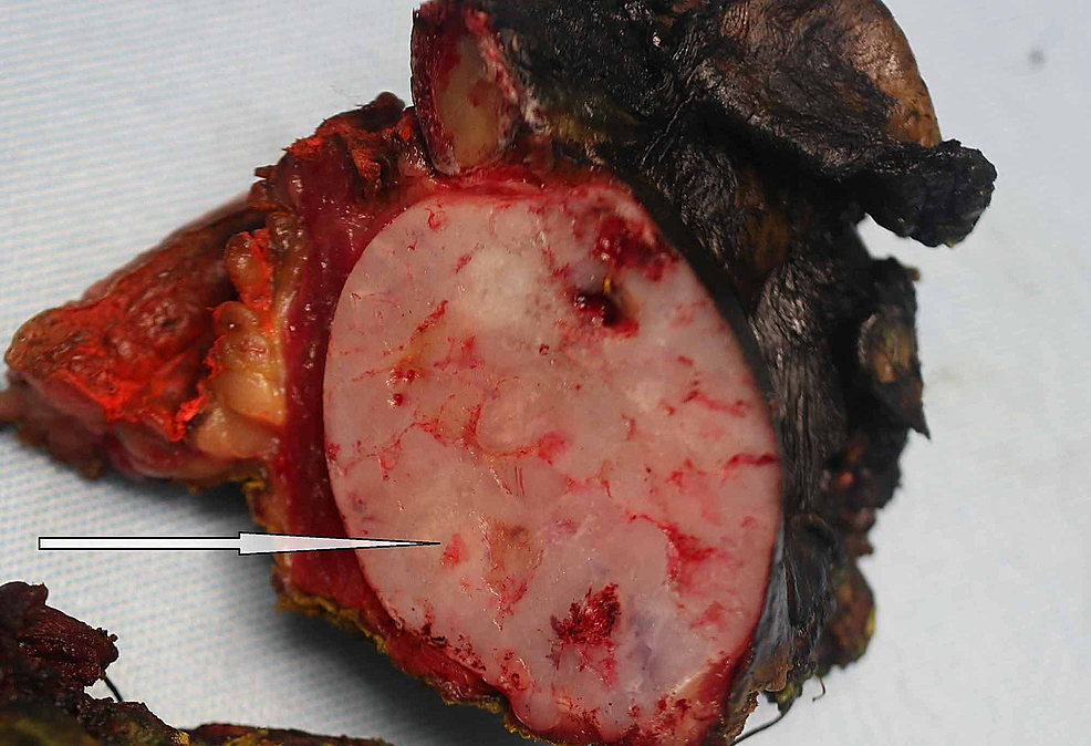 Gross-surgical-specimen,-with-the-arrow-indicating-the-tumor.