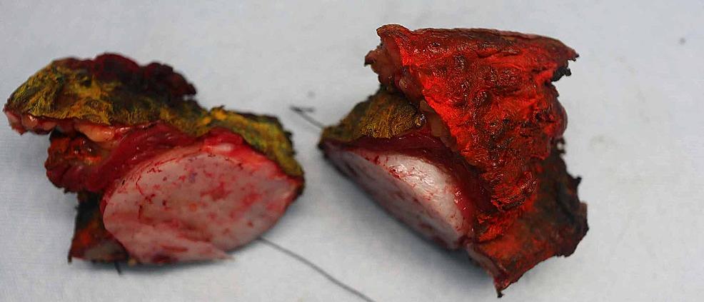 Gross-surgical-specimen.