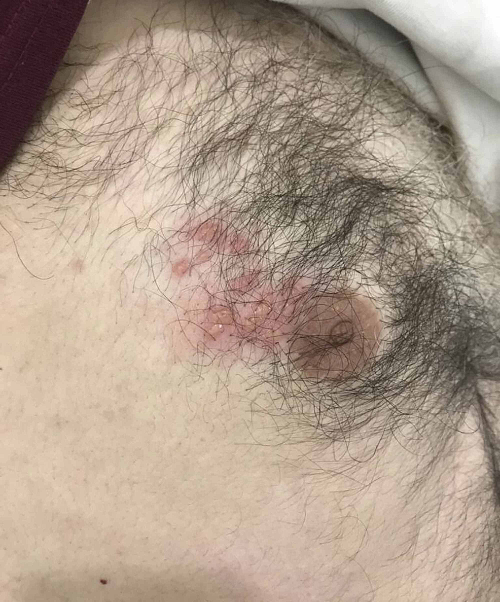 Vesicles-with-surrounding-erythema-affecting-the-area-around-the-right-nipple.