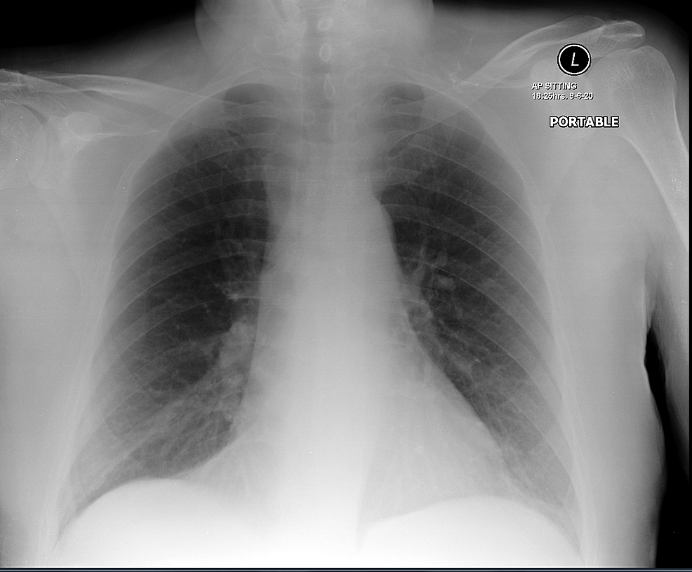 Patient's-chest-X-ray-showing-normal-appearance.