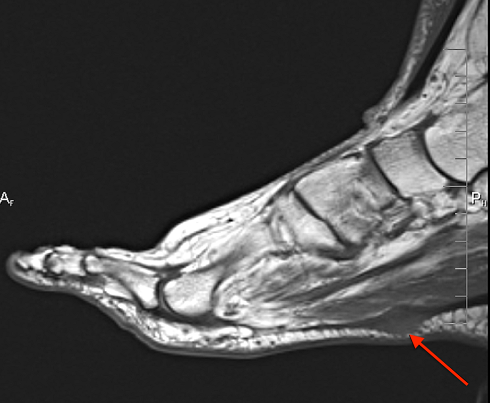 Case-3-MRI-showing-the-T1-weighted-sagittal-image-of-the-right-foot-demonstrating-a-plantar-fibroma-within-the-central-portion-of-the-plantar-cord.