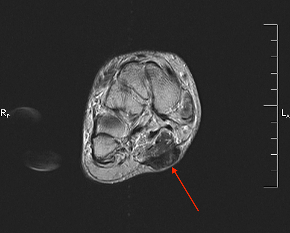 Case-3-MRI-showing-the-axial-T2-weighted-image-of-the-right-foot-demonstrating-a-large-plantar-fibroma-extending-from-the-central-cord-into-the-subcutaneous-tissue-of-the-plantar-surface-of-the-foot.