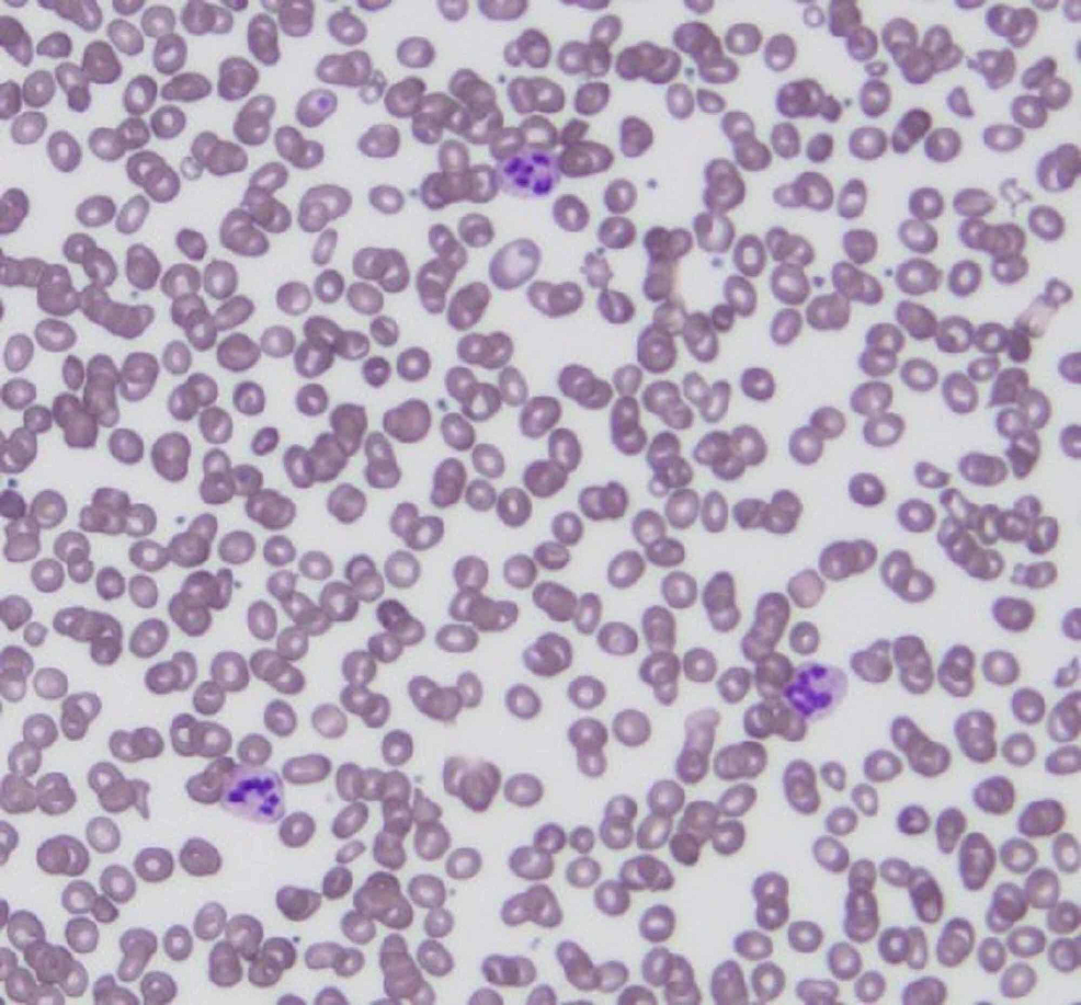 Patient's-peripheral-smear-showing-multiple-hypersegmented-neutrophils.