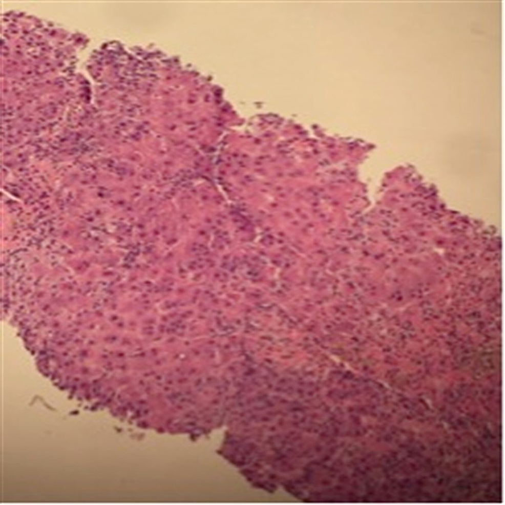 steroid induced hepatitis in dogs