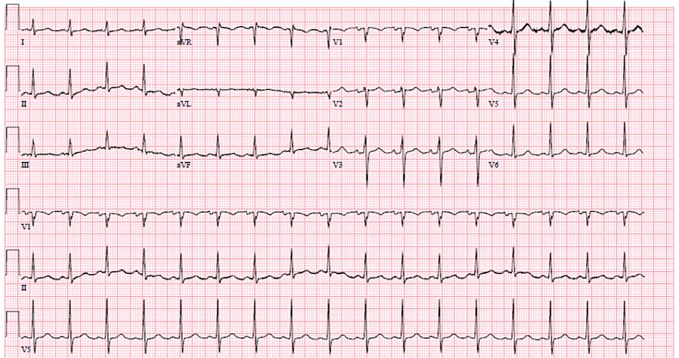 Electrocardiogram-showing-sinus-tachycardia