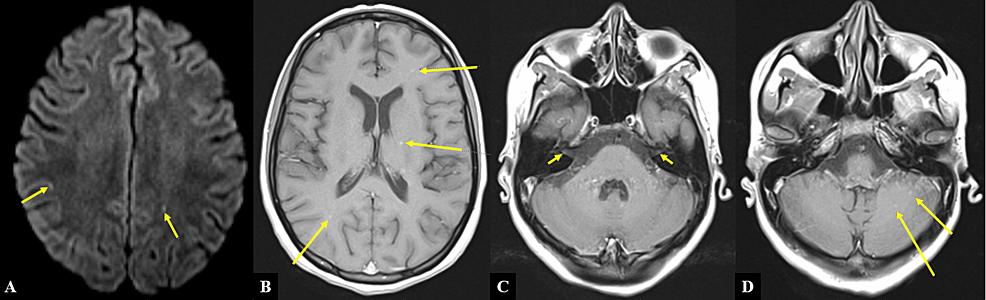 MRI-of-the-brain