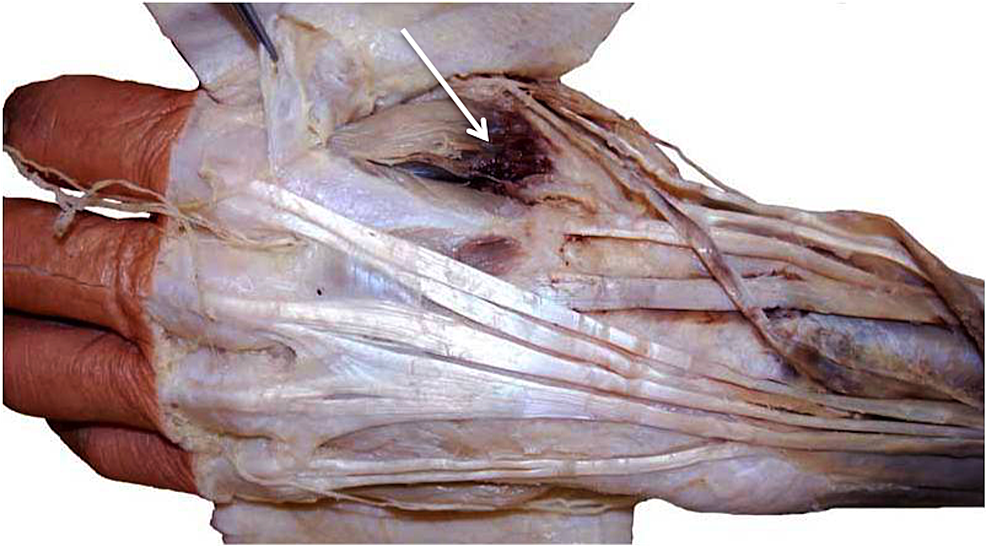 A-subcutaneous-hematoma-following-intravenous-access.-This-same-specimen-was-found-to-have-a-transection-of-a-branch-of-the-superficial-radial-nerve-as-it-crossed-the-anatomical-snuffbox