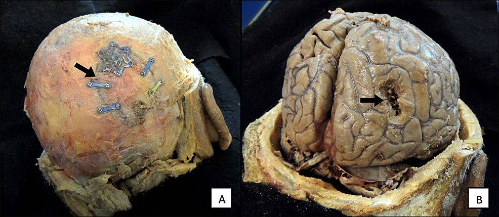 (A)-Bone-flap-from-a-previous-surgical-site-in-a-68-year-old-cadaver.-(B)-Tumor-resection-site