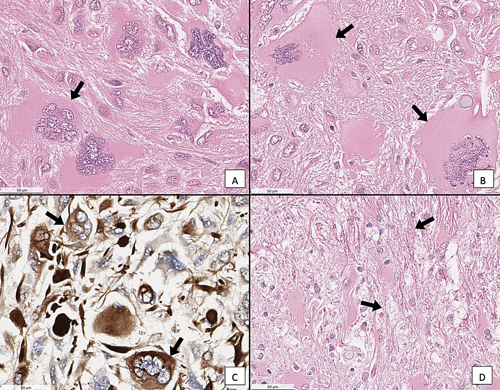 (A&B)-H&E-stain-of-GC-neoplasm.-(C)-Vimentin-stain-of-a-GC-neoplasm.-(D)-H&E-stain-of-GC-neoplasm,-showing-excess-collagen-fibers-in-the-extracellular-matrix