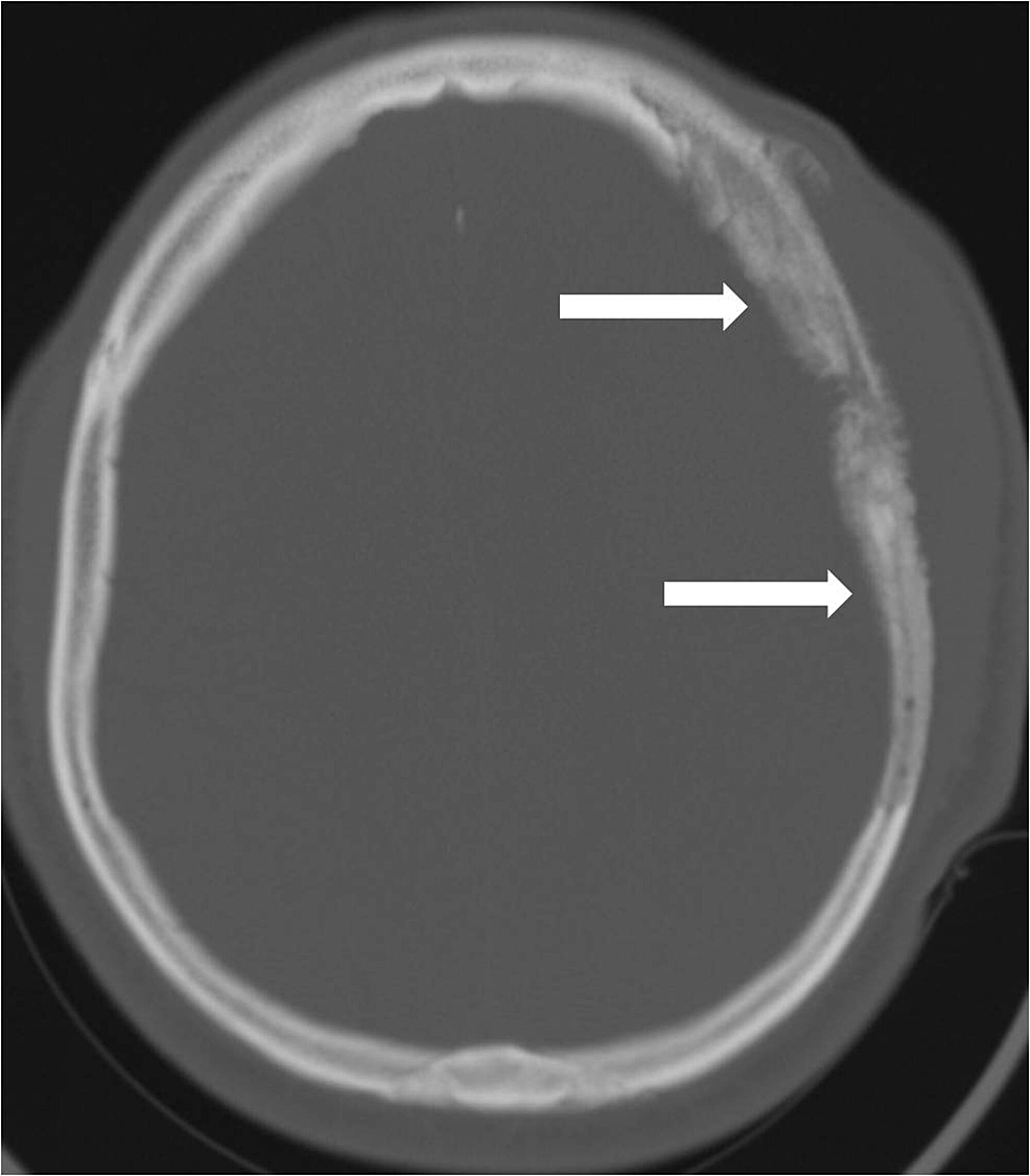 Bone-windows-from-the-head-computed-tomography-(CT)-reveal-the-osseous-involvement-with-both-osteolysis-and-hyperostosis-of-the-left-frontal-and-parietal-calvaria-(arrows).