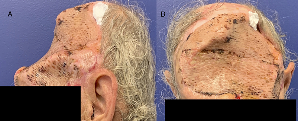 The-patient-five-days-post-split-thickness-skin-graft-placement.