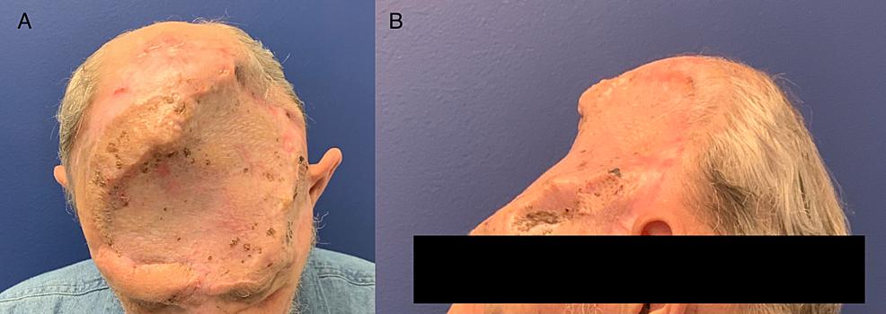 -The-patient-11-months-post-split-thickness-skin-graft/final-procedure.