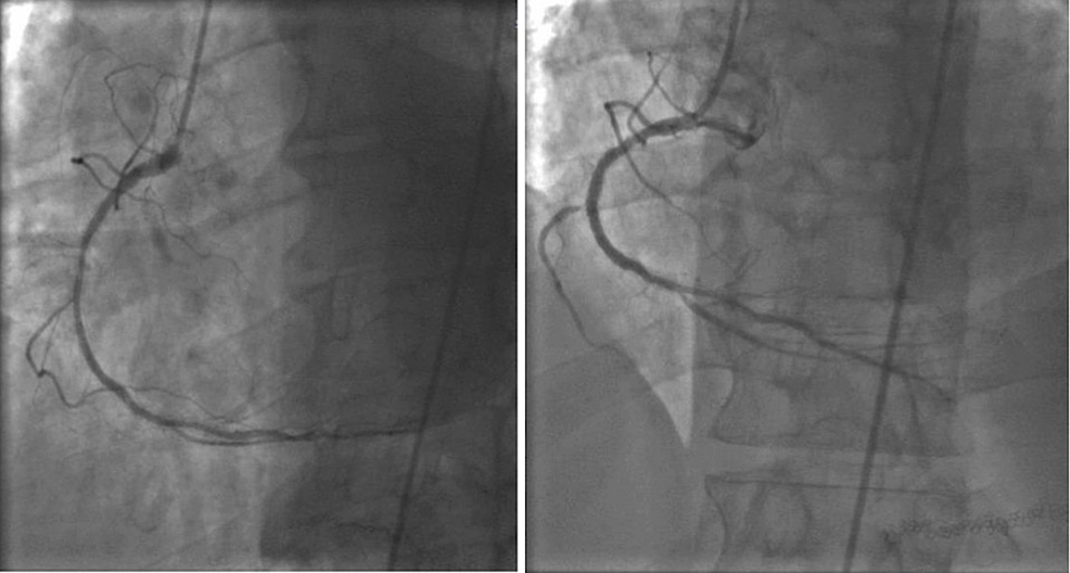 Initial-percutaneous-angioplasty-of-the-right-coronary-artery-with-drug-eluting-stenting-performed-in-2006