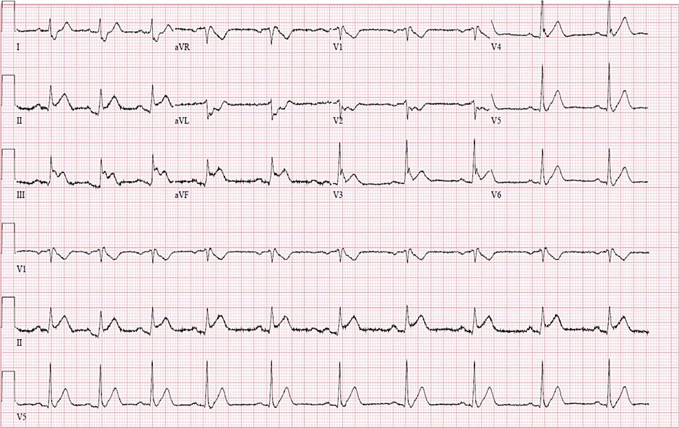 Electrocardiogram-upon-presentation-to-the-emergency-room-showing-ST-segment-elevation-in-leads-II-III-aVF