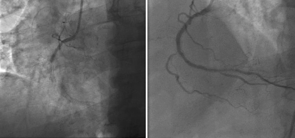 Angiogram-of-the-right-coronary-artery-showing-acute-in-stent-thrombosis-followed-by-percutaneous-coronary-intervention-with-complete-revascularization-of-the-artery