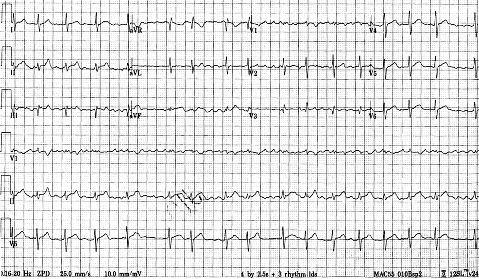 A-12-lead-electrocardiogram-demonstrating-atrial-fibrillation,-calculated-heart-rate-of-102-beats-per-minute,-normal-axis,-no-significant-ST-segment-deviation-and-non-specific-T-wave-abnormalities.