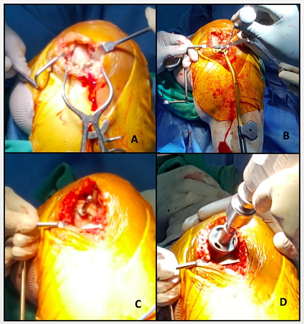 Intraoperative-images