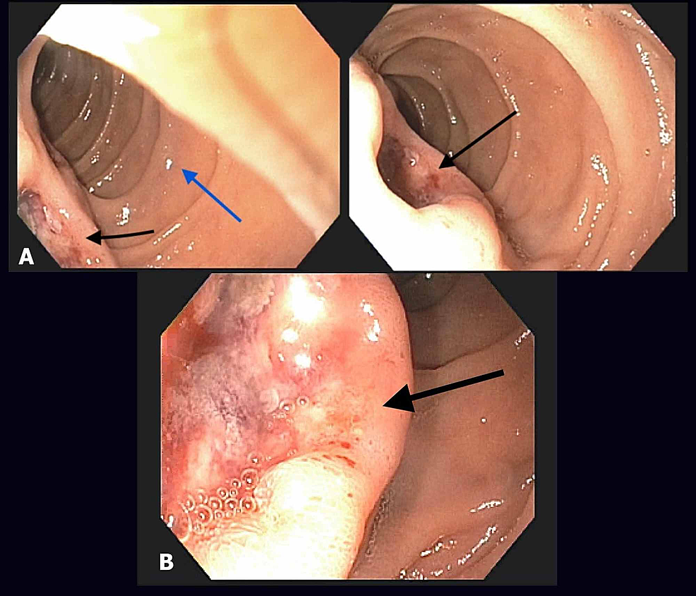 EGD-showing-a-segment-of-duodenum.-(A)-A-deep-ulcer-in-the-duodenal-papilla-with-irregular-margins-(black-arrows)-and-relatively-normal-appearance-of-second-part-of-duodenum-(blue-arrow)-is-seen.-(B)-Enlarged-view-of-the-ulcer-with-a-friable-and-malignant-appearance-(arrow).