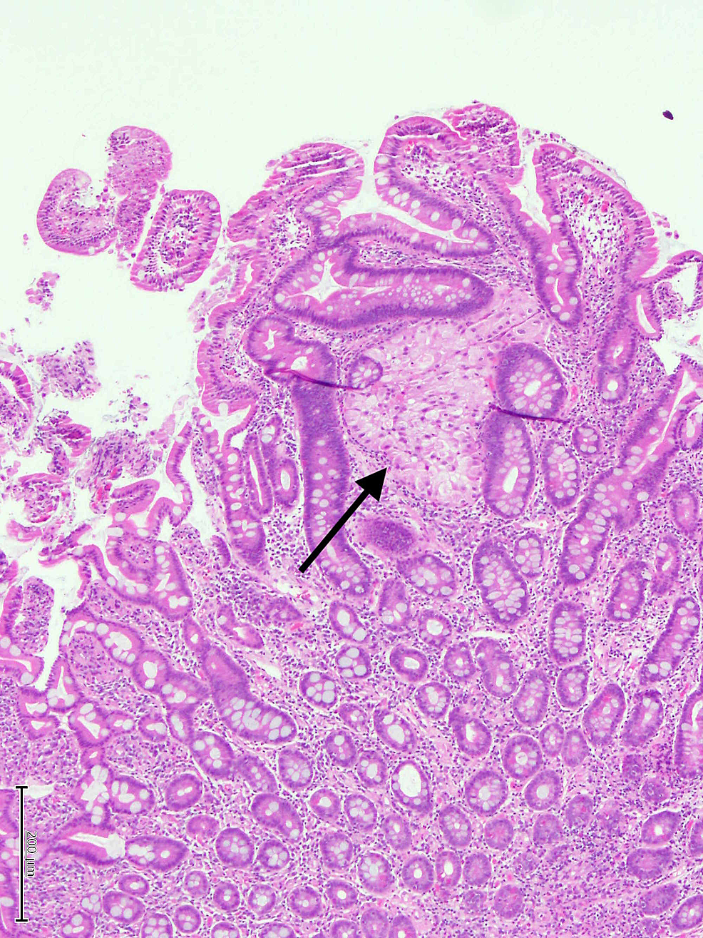 Hematoxylin-and-Eosin-stain-showing-a-focus-of-metastatic-chromophobe-RCC-involving-laminal-propria-of-small-bowel-mucosa-(arrow).