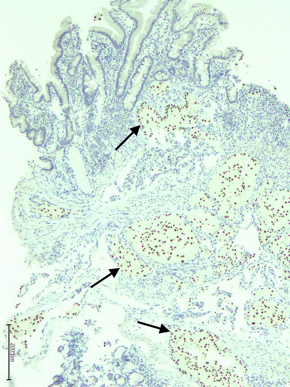 Metastatic-RCC-demonstrating-strong-nuclear-PAX-8-reactivity-by-immunohistochemistry-as-indicated-by-arrows.-