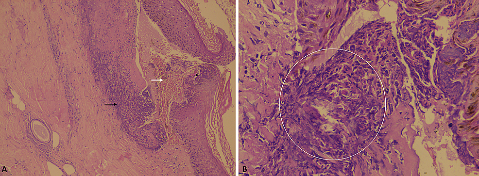 Skin-histopathology