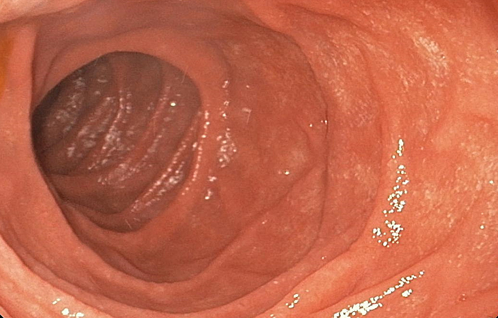 Upper-endoscopy-revealing-the-absence-of-evident-mucosal-or-submucosal-lesion-in-the-duodenal-lumen.