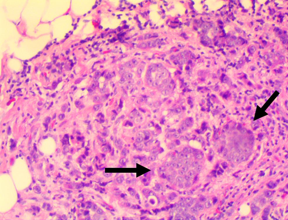 Hematoxylin-and-Eosin-Staining-of-Left-Orbital-Lesion-Biopsy-Specimen