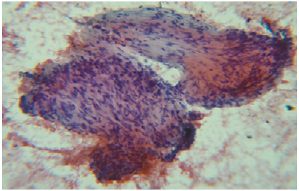 Papanicolaou-stain-20-x-cytology-of-the-fine-needle-aspiration-specimen-showing-few-clusters-of-atypical-spindle-cells.