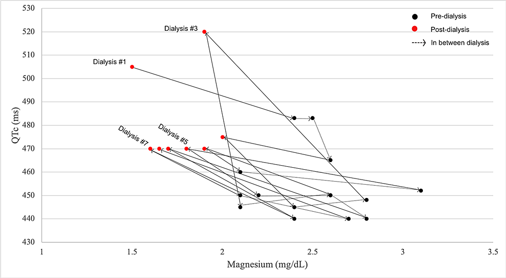 Connected-scatter-plot-showing-the-association-between-QTc-and-magnesium-across-consecutive-dialysis-sessions.-The-data-points-are-sequential-in-time.-There-is-a-pattern-of-decrease-in-magnesium-and-increase-in-QTc-post-dialysis-(red-dots-tend-to-be-shifted-upward-and-to-the-left).-With-initiation-of-scheduled-magnesium-supplementation-(from-dialysis-#3-onward),-there-is-less-difference-in-magnesium-and-QTc-pre--and-post-dialysis-sessions