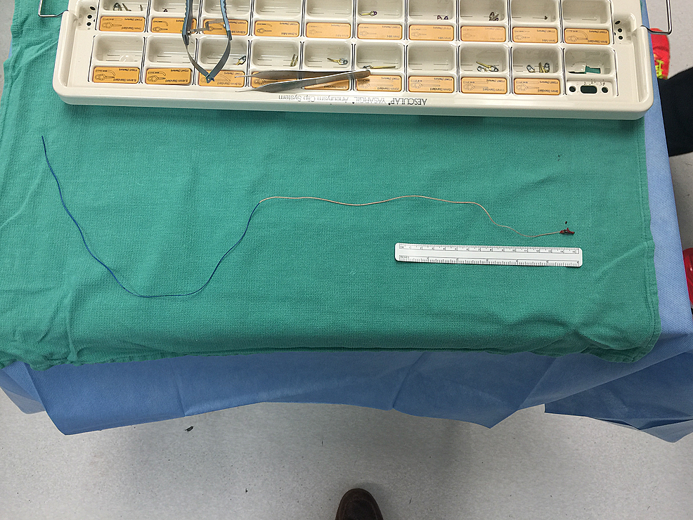 Microcatheter-Removed-in-its-Entirety