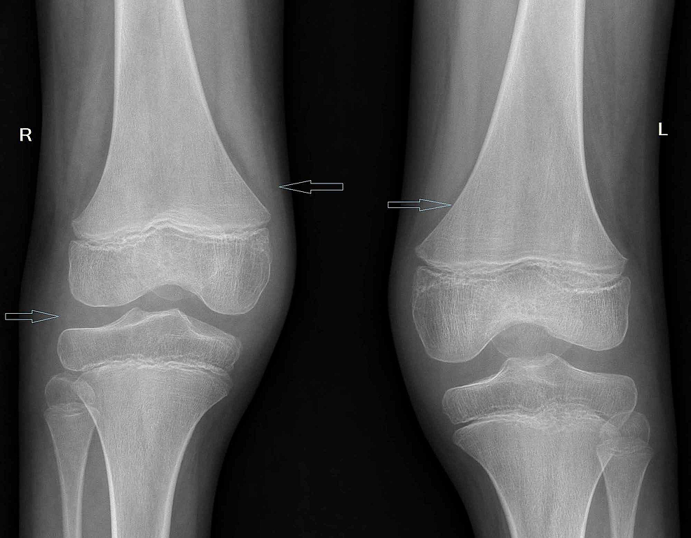 Bilateral-knee-joint-X-ray-showing-soft-tissue-swelling-with-mild-osteopenia