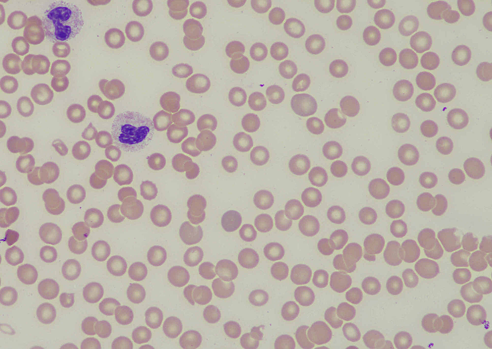 Peripheral-smear-demonstrating-thrombocytopenia-and-normal-platelet-morphology-