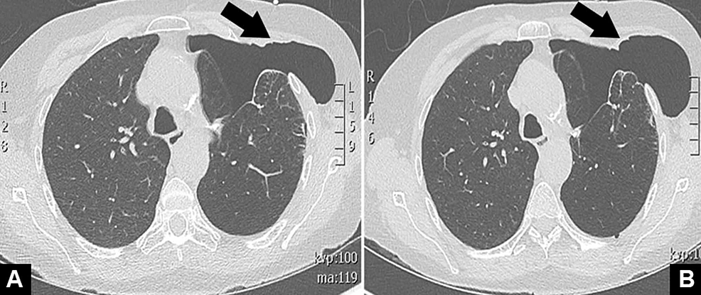 Non-contrast-CT-scan-of-the-chest-during-inspiration-(A)-and-exhalation-(B)-demonstrating-left-pneumothorax-with-herniation-through-the-anterior-chest-wall.
