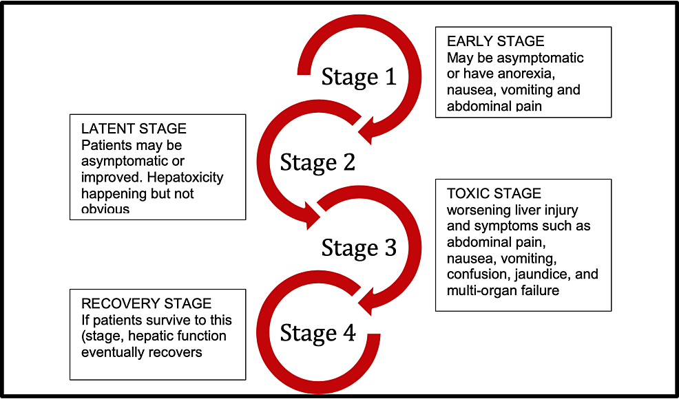 Stages-of-acetaminophen-toxicity