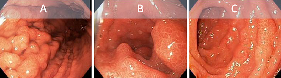 Endoscopy-showing-diffuse-inflammatory-and-nodular-changes-to-the-gastric-antrum-(A)-and-duodenum-(B-and-C).