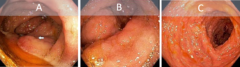 Colonoscopy-showing-diffuse-inflammatory-and-nodular-changes-to-the-ileocecal-valve-(A),-ascending-colon-(B),-and-transverse-colon-(C).