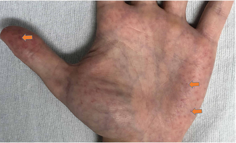 Angiokeratoma-of-the-distal-thumb-and-palm.